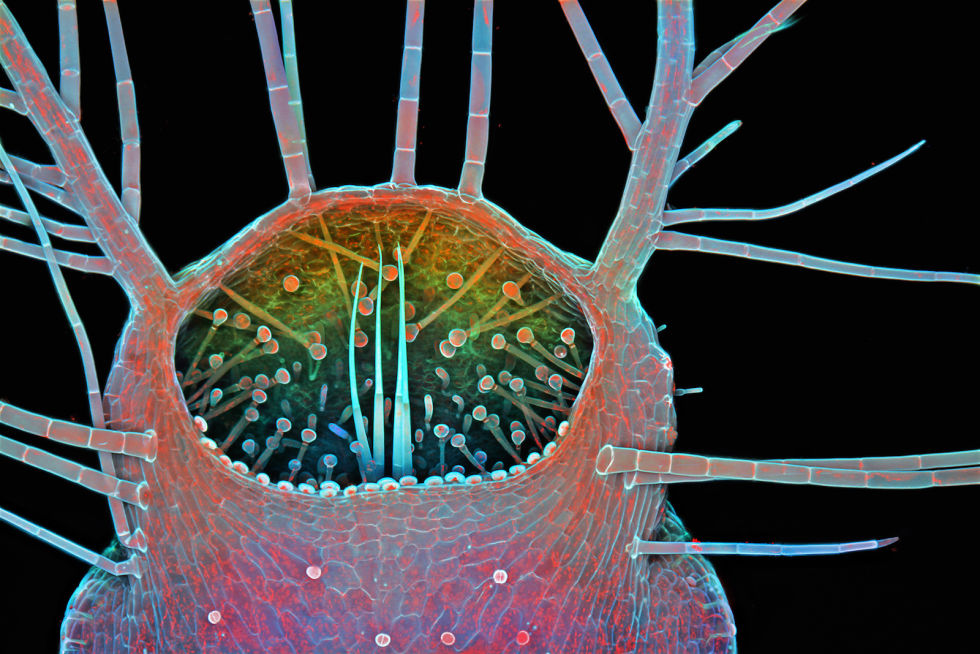 Microscopic treasures: Abstract art discovered under the microscope